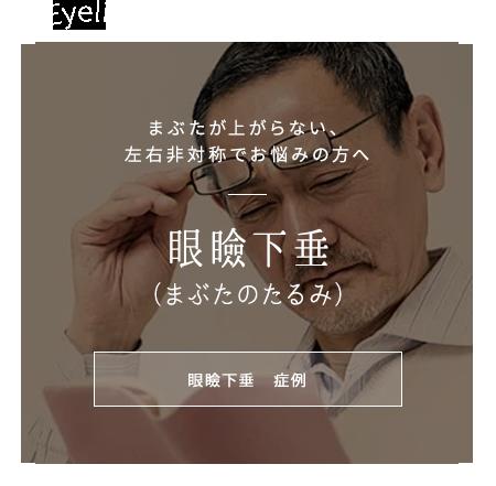 眼瞼下垂(まぶたのたるみ)